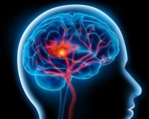 Schlaganfall - Hirninfarkt