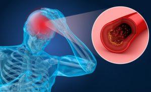 Verengung eines hirnversorgenden Blutgefäßes